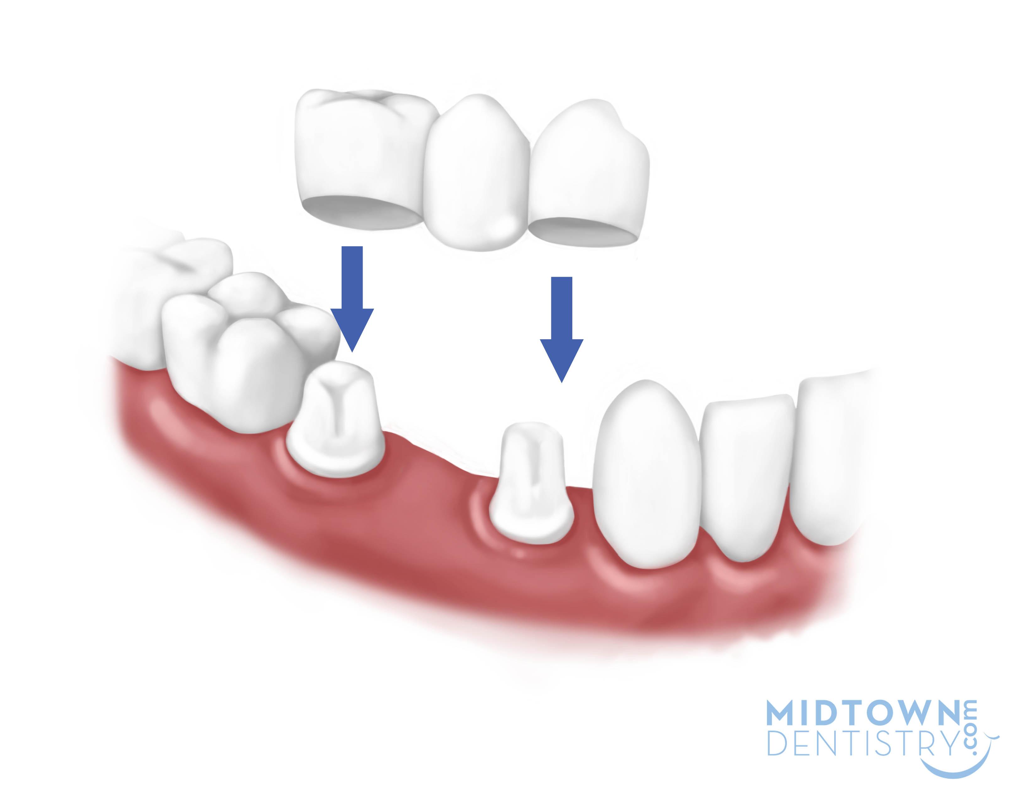 home woodcrest dental